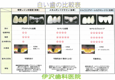 白い歯比較表